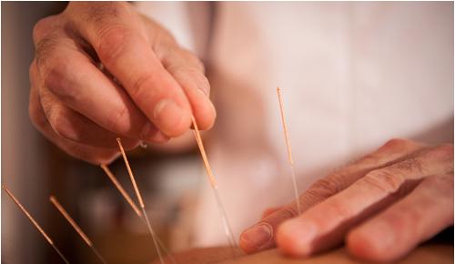 acupuntura en alicante fisioetxea, fisioterapia y osteopatia