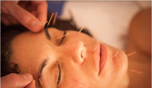 lifting facial con acupuntura fisioetxea alicante fisioterapia, osteopatía y acupuntura